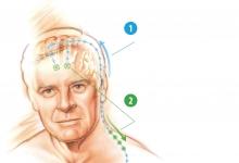 大脑也能装起搏器?