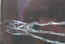 三根手指的木乃伊是外星人?
